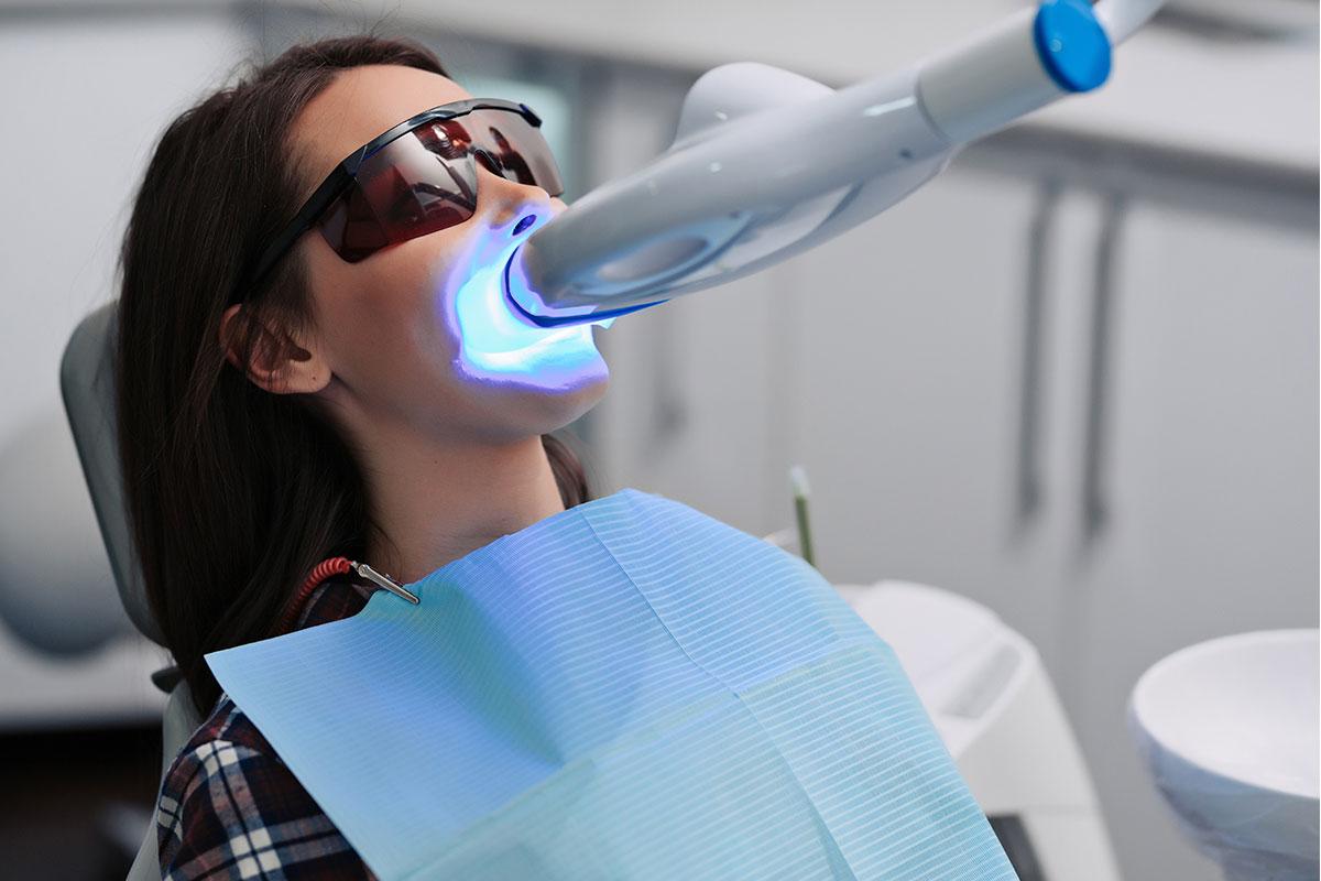 Sbiancamento dentale con gel. Come funziona e perché evitare il fai da te