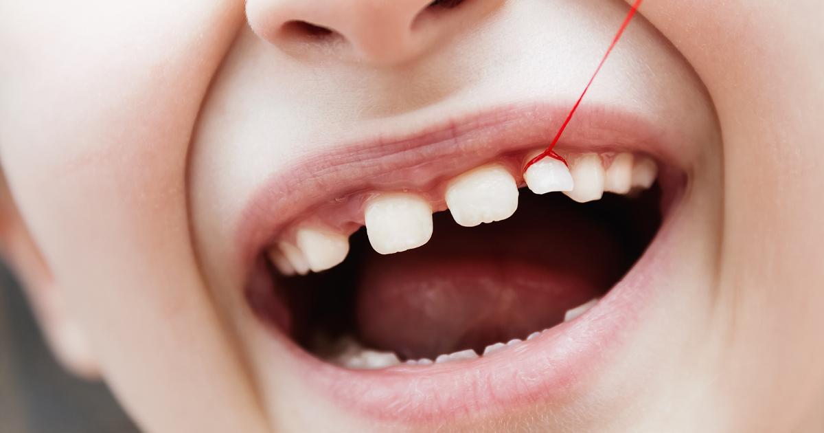 Eruzione dentaria: l'importanza dei denti da latte
