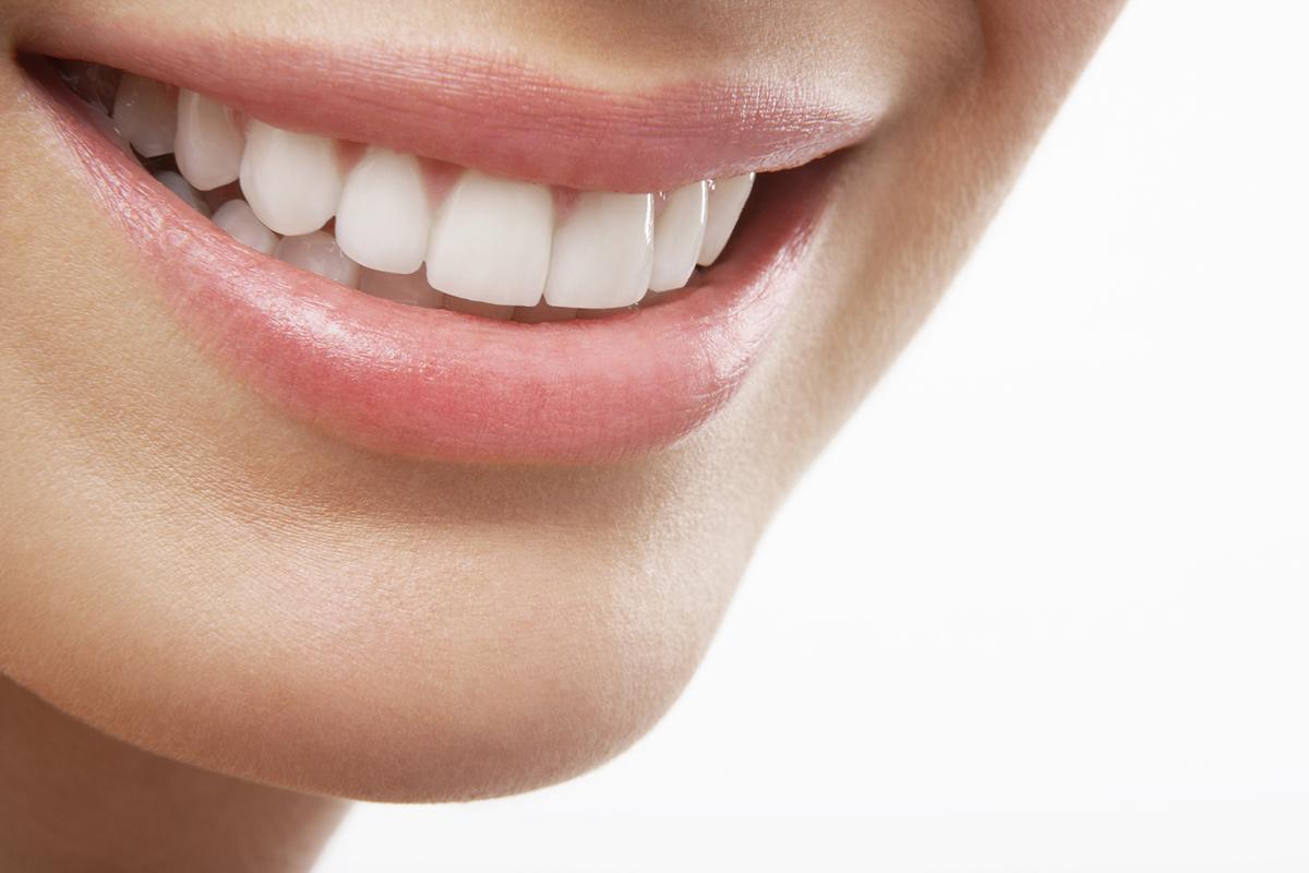Boom di richieste per lo sbiancamento dentale