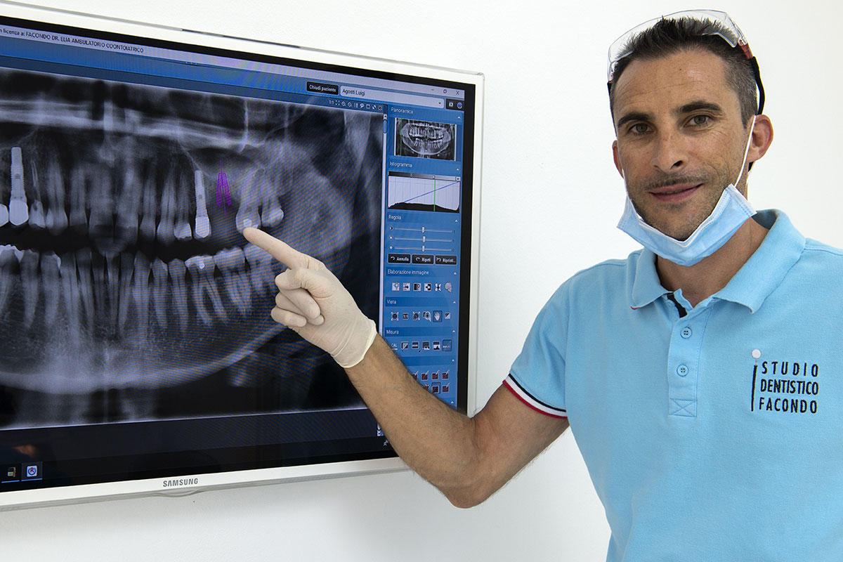 Endodonzia e trattamento endodontico: le cose da sapere