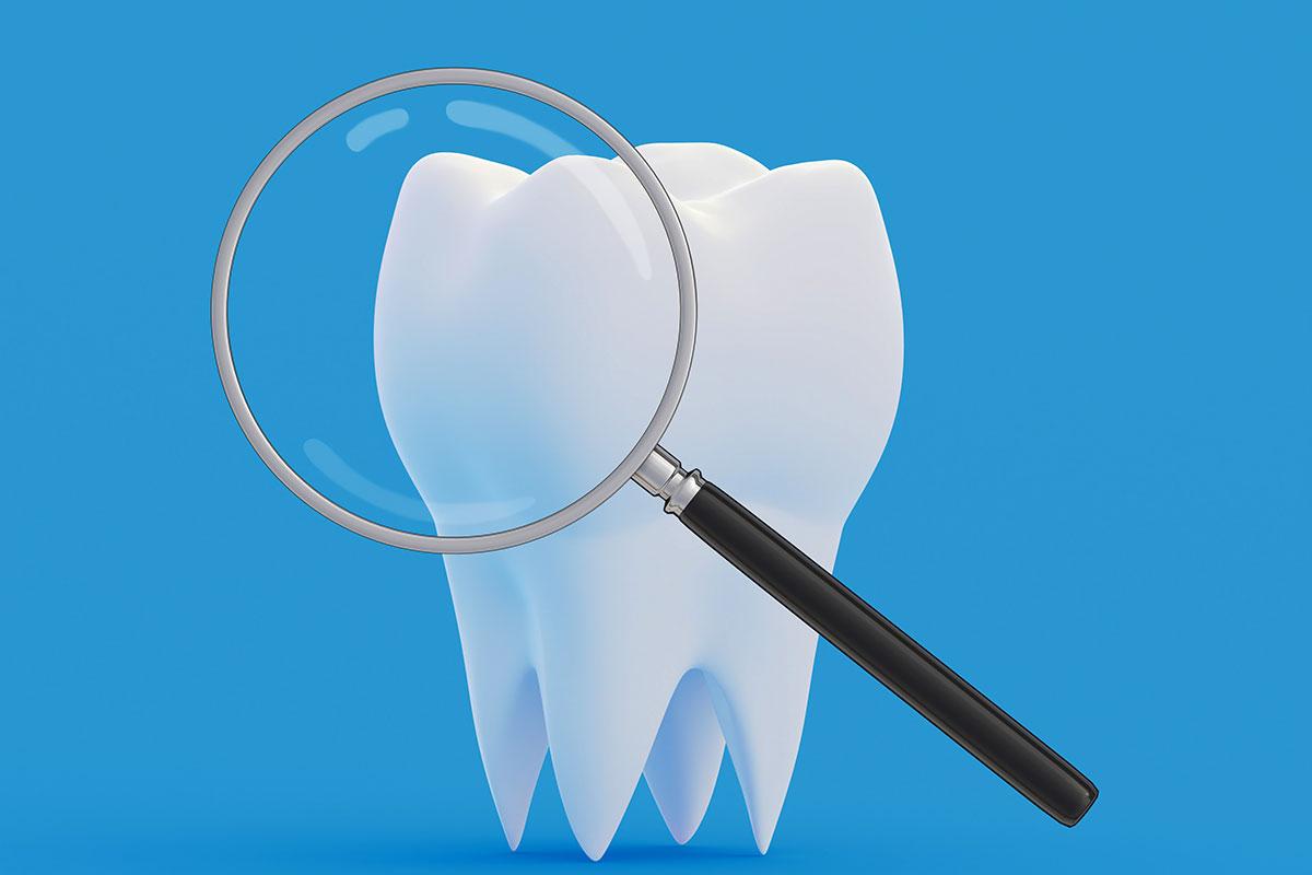 Fluoro dentale: come agisce e perché è importante